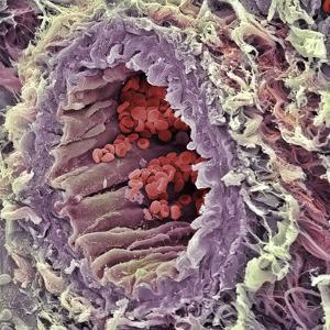 Artery SEM by Steve Gschmeissner