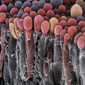 Choroid Plexus Secretory Cells, SEM by Steve Gschmeissner
