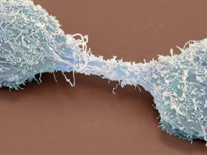 Dividing Brain Cancer Cells, SEM by Steve Gschmeissner