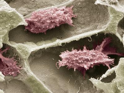 Osteoclasts In Bone Lacunae, SEM