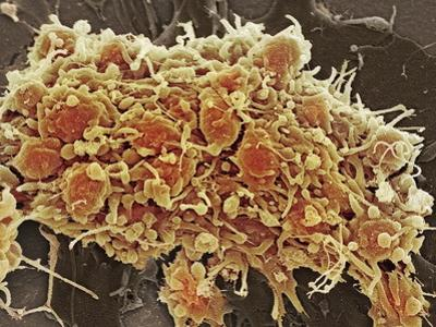 Platelets In a Blood Clot by Steve Gschmeissner