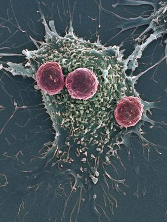 T Lymphocytes And Cancer Cell, SEM by Steve Gschmeissner