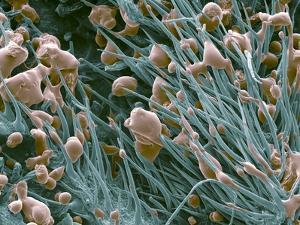 THC Cannabis Drug Crystals by Steve Gschmeissner