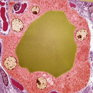 Thyroid Gland Follicle, TEM by Steve Gschmeissner