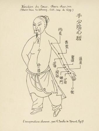 Acupuncture the Meridian of the Heart by Tchenn Tsiou Ta-tcheng