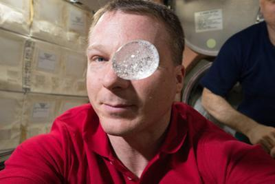 Astronaut Looks Through a Sphere of Water as an Antacid Tablet Dissolves Inside by Terry Virts