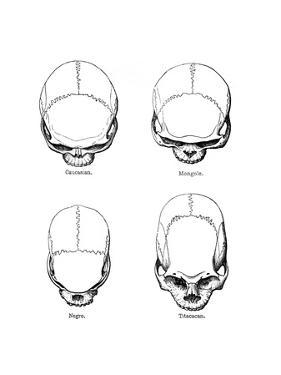 The Vertical Configuration of the Skull, 1848