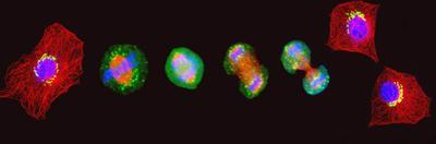 Confocal Image of Cells at Various Stages of Mitosis