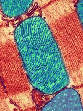 Mitochondrion, TEM by Thomas Deerinck
