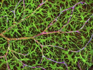 Retina Blood Vessel And Nerve Cells by Thomas Deerinck