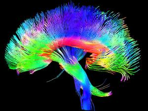 Brain Pathways by Tom