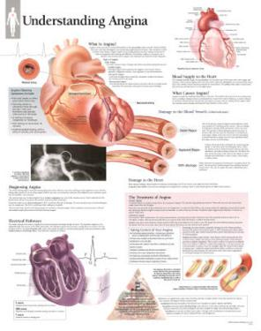 Understanding Angina Educational Disease Chart Poster