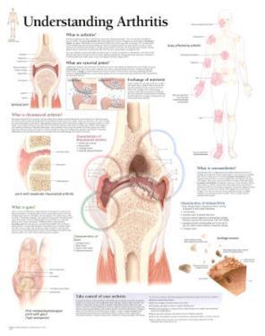 Understanding Arthritis Educational Chart Poster