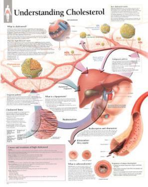 Understanding Cholesterol Educational Chart Poster