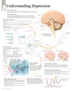Understanding Depression Educational Chart Poster