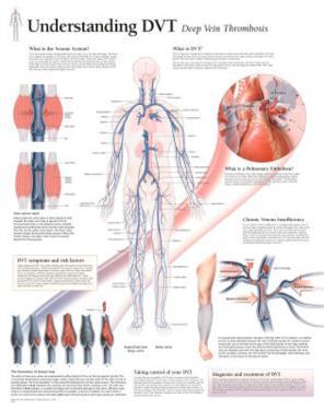 Understanding DVT Educational Disease Chart Poster