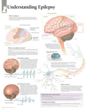 Understanding Epilepsy Educational Chart Poster