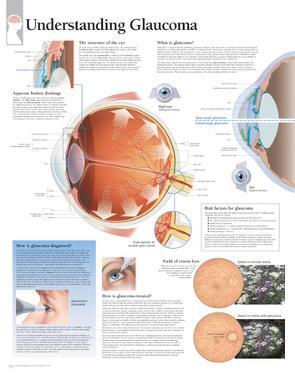 Understanding Glaucoma Educational Eye Disease Poster