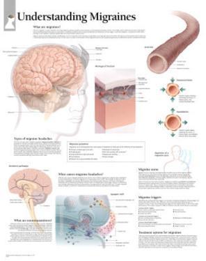 Understanding Migraines Educational Chart Poster