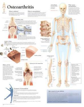 Understanding Osteoarthritis Educational Chart Poster