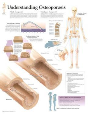 Understanding Osteoporosis Educational Chart Poster