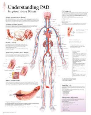 Understanding PAD Educational Disease Chart Poster