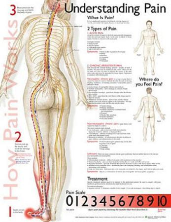 Understanding Pain Anatomical Chart Poster Print