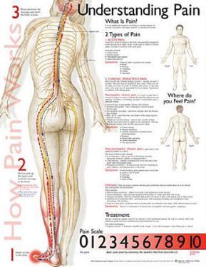 Understanding Pain Anatomical Chart Poster Print