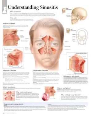 Understanding Sinusitis Educational Chart Poster
