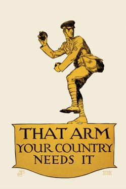 That Arm - Your Country Needs It by Vojtech Preissig
