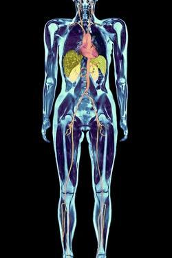 Full Body Scan, MRI Scan by Volker Steger