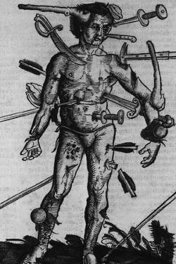 Wound Man Illustrates Effects of Different Weapons. by Hans Wechtlin, Ca. 1500
