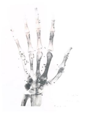 X-Ray Photograph of Hand of Person
