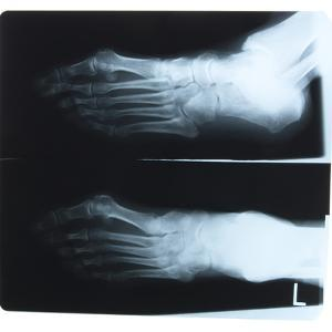 X-Ray Photograph of Person's Feet