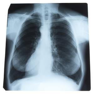 X-Ray Photograph of Person's Lungs