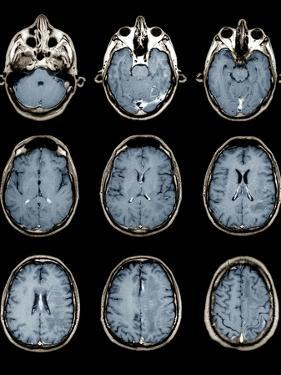 Normal Brain, MRI Scans by ZEPHYR