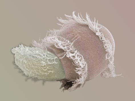 Didinium, Didinium Nasutum, Is a Predatory Protozoan, it Eats Other Protozoans Fotografie-Druck