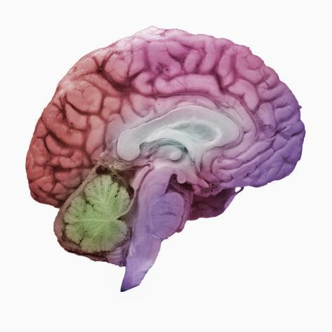 A Mid-sagittal Section Showing the Left Half of the Human Brain Stretched Canvas Print