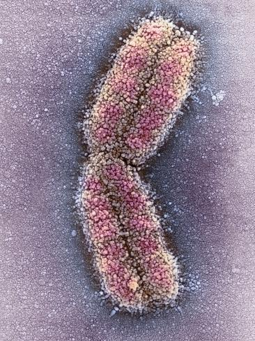 Human Chromosome 1, SEM Photographic Print