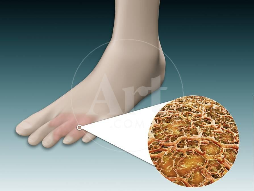 Anatomy Of Foot Fungus With Microscopic Close Up Posters At