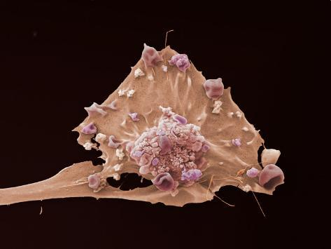 Breast cancer electron microscope