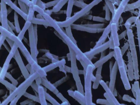 bacillus cereus bacteria cause food poisoning photographic print at