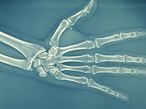 Bones of Normal Human Hand Stretched Canvas Print