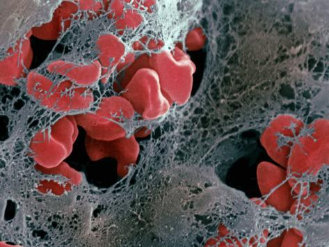 Blood Clot Formation, Showing Trapped Red Blood Cells or Erythrocytes in Fibrin Photographic Print
