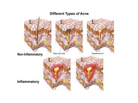 Different Types Of Acne Non Inflammatory And Inflammatory Posters