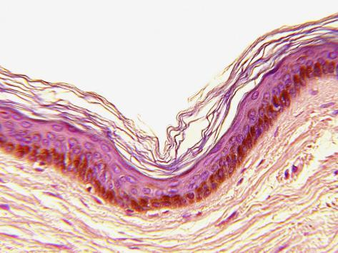 Cross-Section of Negroid Human Skin Photographic Print