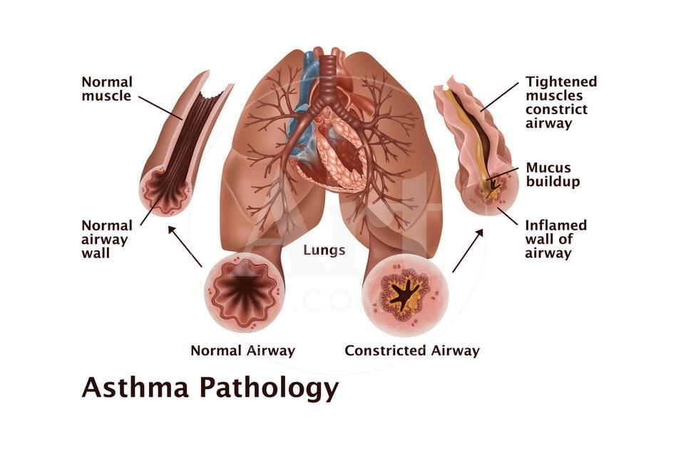 Asthma Pathology Posters by Gwen Shockey - AllPosters.ca