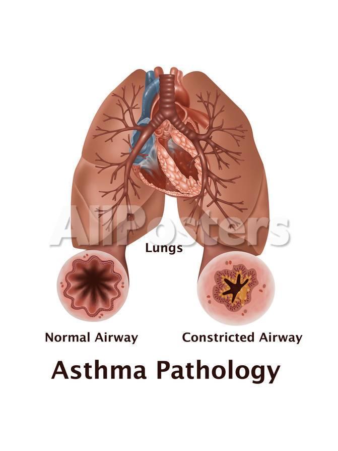 Asthma Pathology Art by Gwen Shockey - AllPosters.co.uk