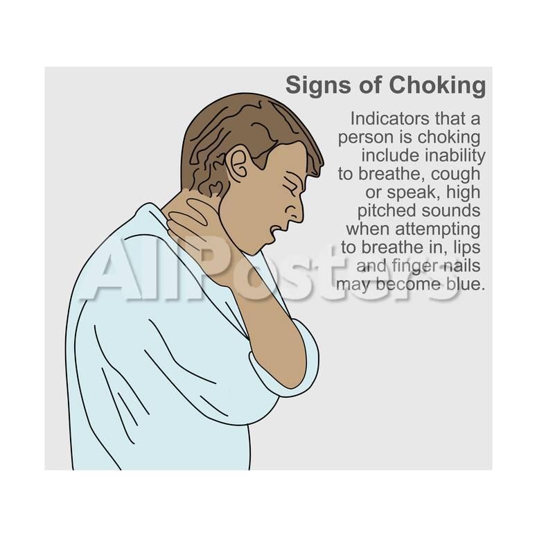 オールポスターズの gwen shockey signs of choking ポスター