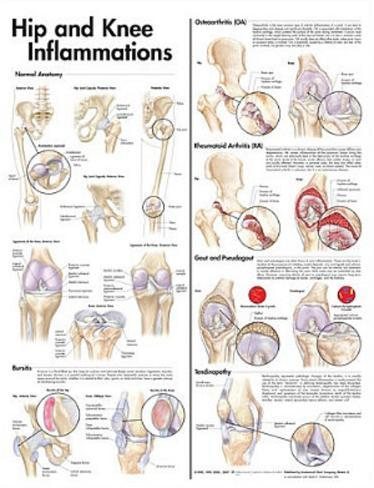 Hip and Knee Inflammations Anatomical Chart 2nd Edition Poster Print Poster